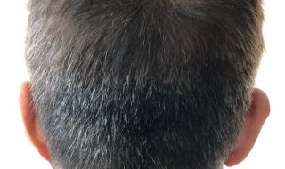 Best Haircut for Thinning Crown