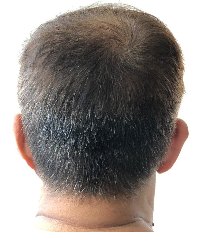 Men S Haircut For Thinning Crown Treat Hair Loss Now