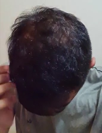 Does Minoxidil Really Work