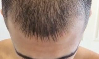 Does Minoxidil Work